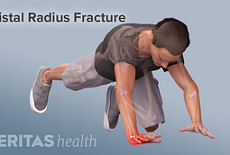 Falling on an outstretched hand cause for distal radius fractures