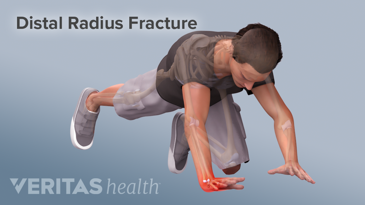 Falling on an outstretched hand causing a radius fracture