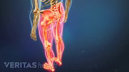 Metastatic Spinal Cancer Video