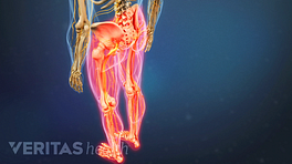Posterior view of the legs with pain in both legs.