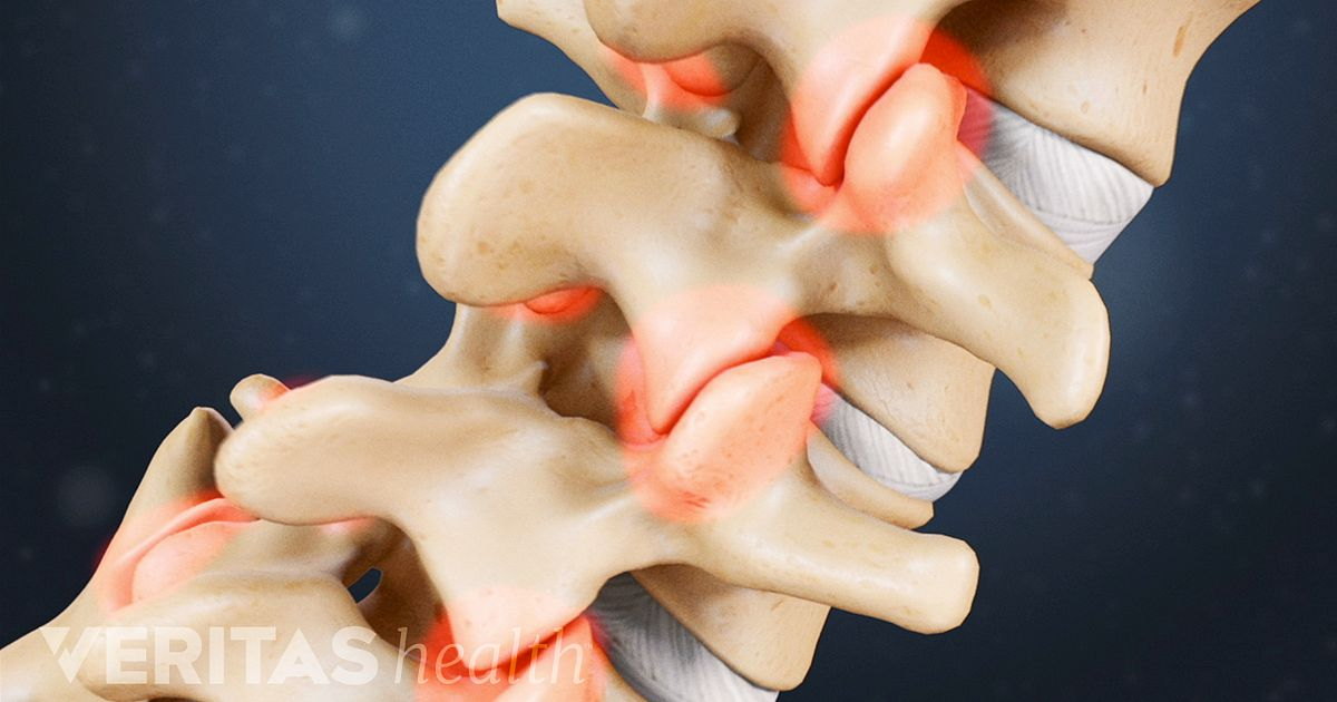 lower back pain symptoms diagnosis and treatment