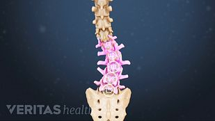Postoperative Care Scoliosis Surgery
