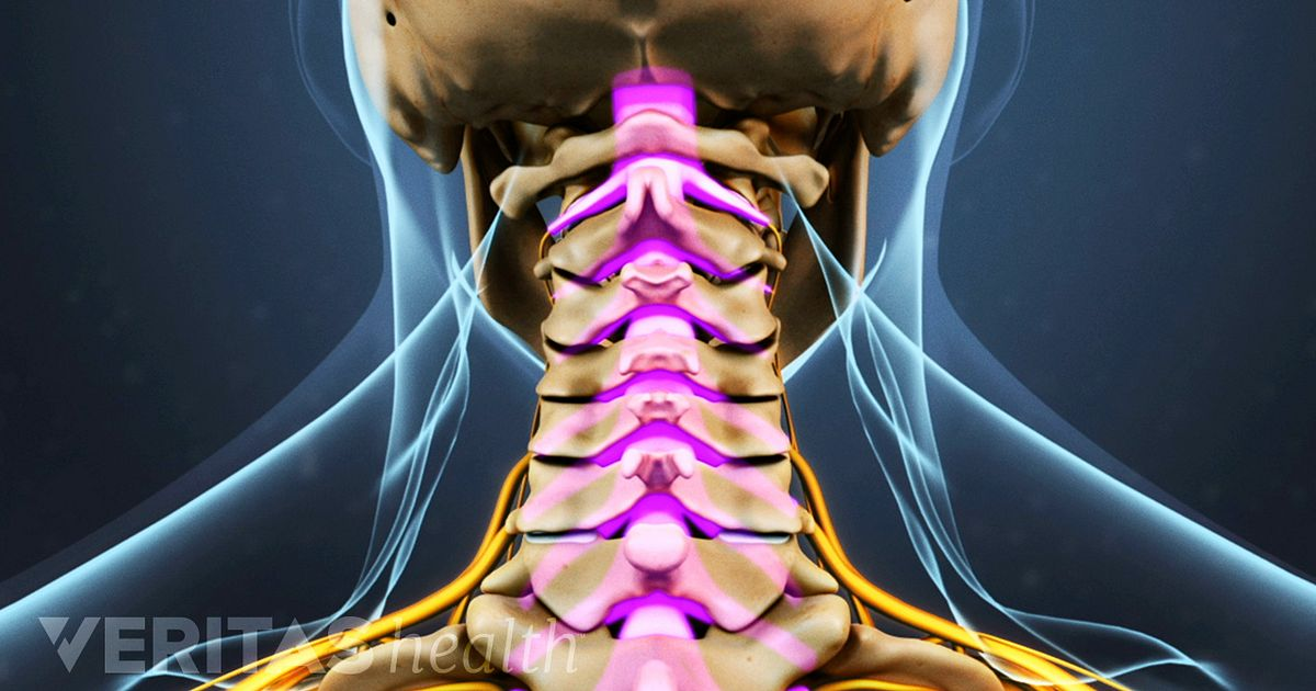 epidural steroid injection cervical radiculopathy