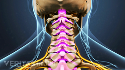 Posterior view of the cervical spine highlighting spinal stenosis.