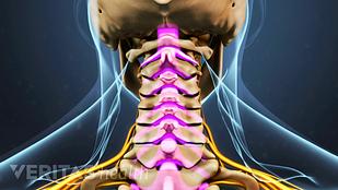 颈脊髓-stenosis.png