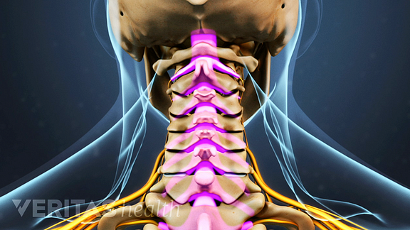 Weak neck muscles and dizziness