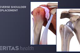 Medical illustration of reverse shoulder replacement procedure