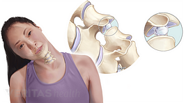 Medical illustration of the gas bubbles within the cervical facet joints that lead to crepitus