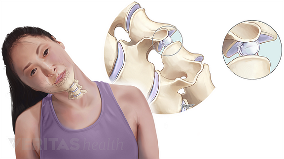 Medical illustration of the gas bubbles within the cervical synovial joints that lead to crepitus
