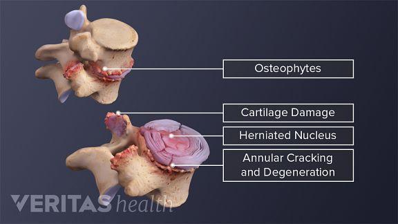 Damaged vertebral segment stabilizes highlighting cartilage damage, herniated nucleus, and annular cracking and degeneration