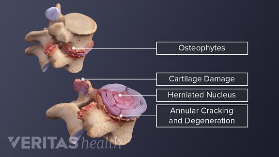 Medical illustration of damaged vertebral segment. Osteophytes, cartilage damage, herniated nucleus, and annular cracking and degeneration are labeled