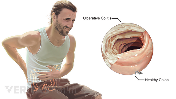 Illustration of person with ulcerative colitis
