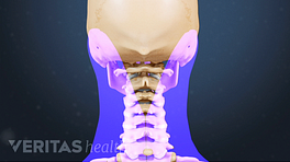 Posterior view of the cervical spine with pain in the neck.