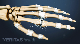 Illustrated skeleton hand showing rhematoid arthritis in the joints
