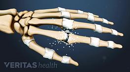 Illustrated skeleton hand showing rhematoid arthritis in the joints