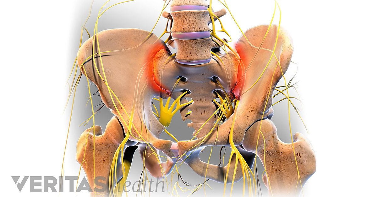 Possible Causes Of Sacroiliitis And Si Joint Pain