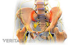 Pelvic bones with SI-Joint highlighted in red