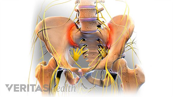 What are some common risks of SI joint fusion surgery?
