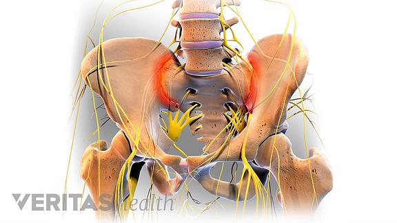 Anterior view of the pelvis highlighting sacroiliitis