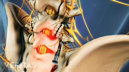 Medical illustration of the lumbar spine showing bone spurs on the facet joints