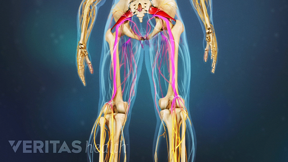 Medical illustration of a posterior view of the legs. The sciatic nerve is highlighted in red, indicating pain, numbness or tingling.