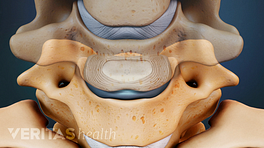 Medical illustration of cervical vertebrae and discs. The middle vertebrae is transparent so you can see the disc between the vertebrae