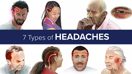 7 Types of Headaches stemming from a neck problem are usually chronic and vary in type depending on the cause.