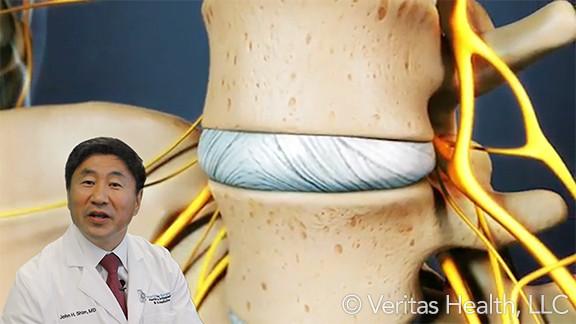 Cervical Disc Pathology