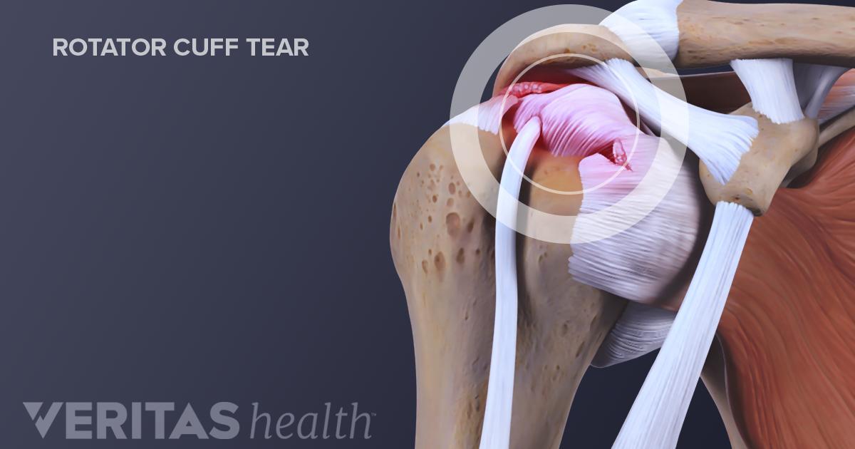 symptoms of a rotator cuff tear
