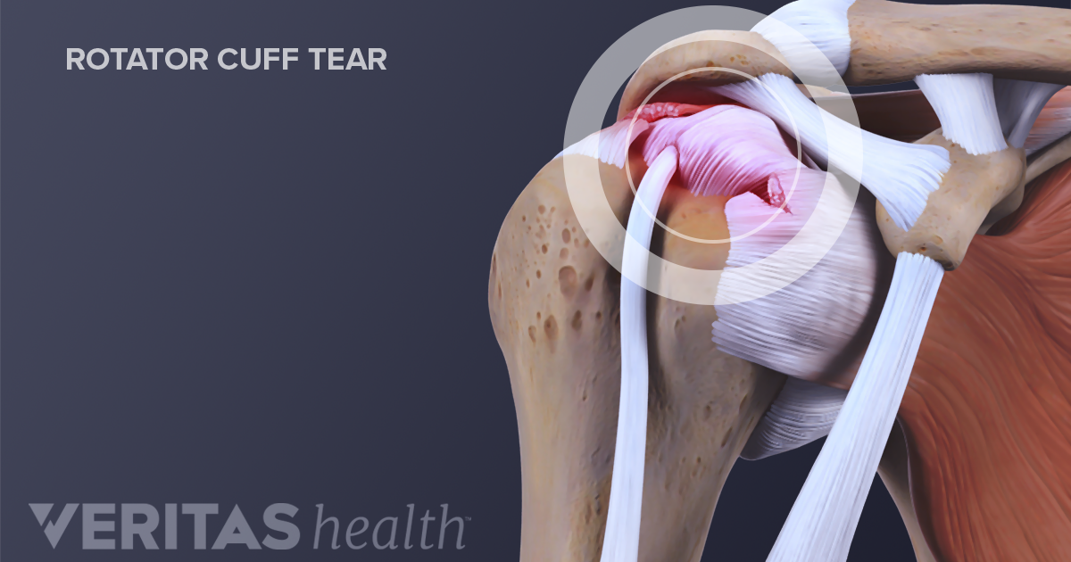 How Do Rotator Cuff Injuries Occur