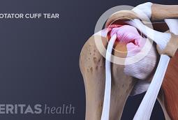 Illustration of the a rotator cuff tear.