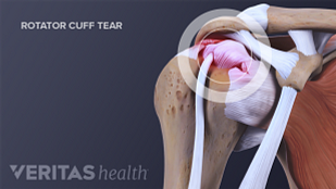 Medical illustration of a rotator cuff tear