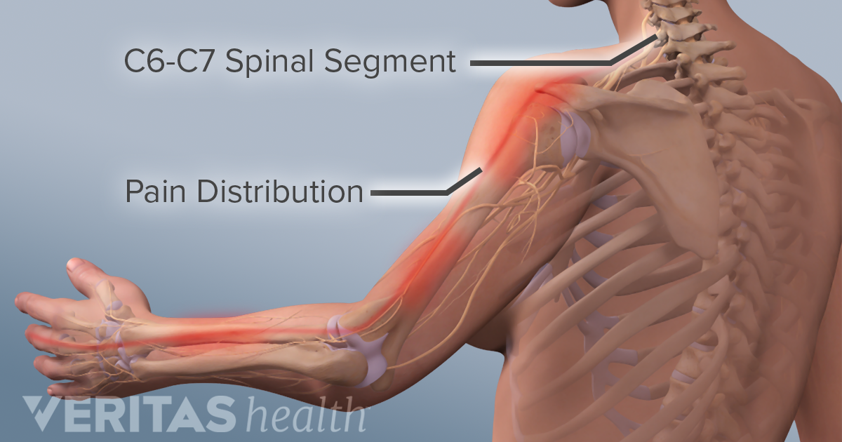 Is Your Shoulder Pain Related To Your Numb Hands Or Fingers
