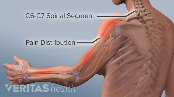 Medical illustration of pain distribution of C6-C7 radiculopathy in the neck shoulder, arm, hand and middle finger