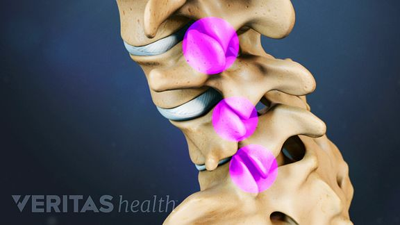 The vertebrae of the lumbar spine are connected by facet joints.