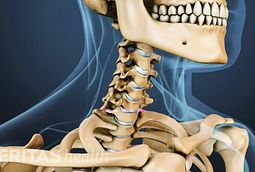 cervical disc replacement procedure