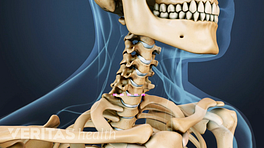 Animated video still showing location of incision for cervical artificial disc replacement procedure