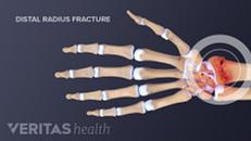 Broken Wrist (Distal Radius Fracture)