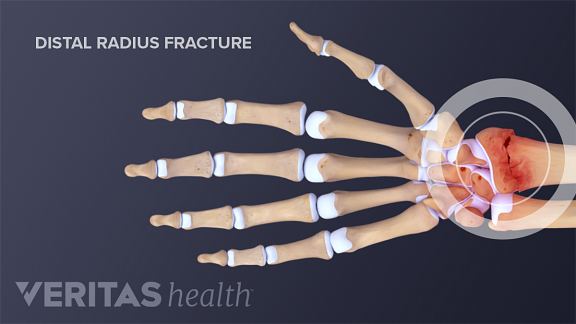 A distal radius fracuture occurs when the there is a break in the wrist end of the radius bone.