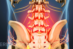 Image of lower back with the pain area caused by lumbar degenerative disc disease higlighted
