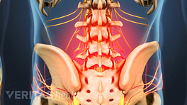 Posterior view of the lumbar spine with red glow representing pain