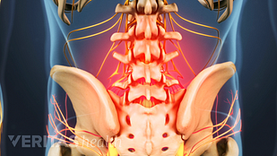 Animated medical still showing lumbar spine