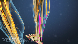 Medical illustration of the lower legs showing bone and nerve structures. One nerve in the right leg is highlighted in red to indicate pain, numbness or tingling.