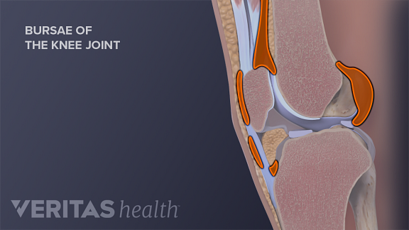 Illustration of a knee bursae