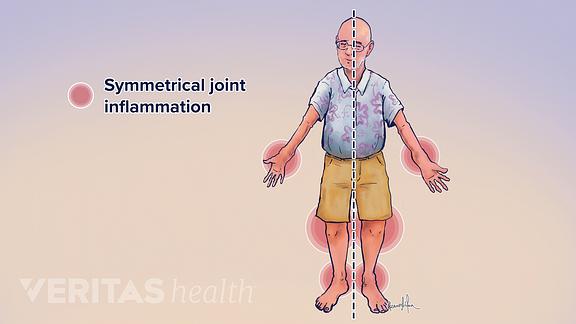 Illustration of symmetrical joint pain from rheumatoid arthritis
