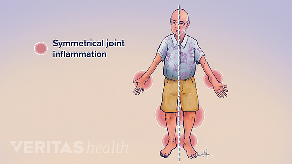 Illustration of symmetrical joint pain from rheumatoid arthritis