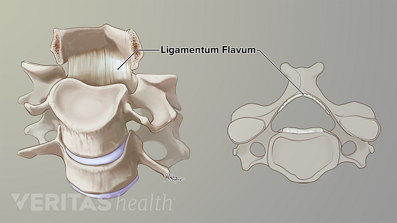 Illustration of the ligamentum flava