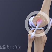 A torn lateral collateral ligament (LCL)