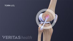 Profile view of a torn LCL in the knee joint.