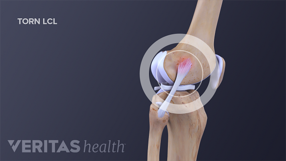 Medical illustration of a torn lateral collateral ligament (LCL)